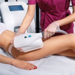 What Makes CoolSculpting So Cool in Mount Pleasant?